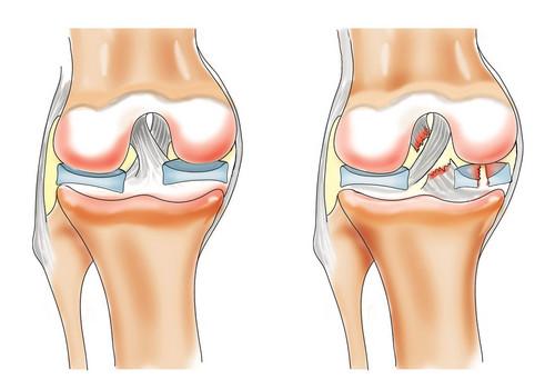 rastyazenie-sviazok-kolenogo-sustava